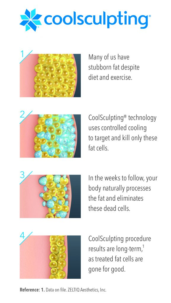 7-Illustration-how-coolsculpting-works-Vert-Medium